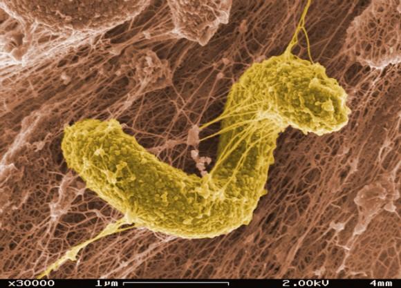 Бактерии которые могут находиться в простате